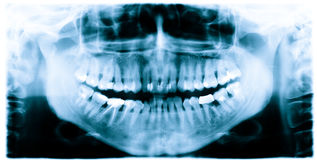 Teeth x-ray image Stock Image