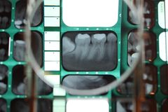 Teeth x-ray under a magnifying glass Stock Images