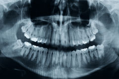 Teeth xray Stock Photo