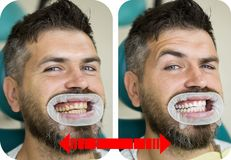 Teeth yellow vs white, before or after whitening. Man with isolated background touching mouth with painful expression royalty free stock images