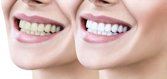 Teeth of young woman before and after whitening. Royalty Free Stock Photography