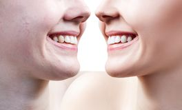 Teeth of young woman before and after whitening. Royalty Free Stock Images