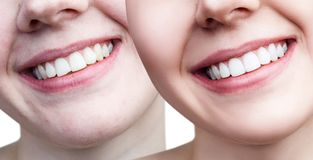 Teeth of young woman before and after whitening. Stock Image