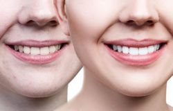 Teeth of young woman before and after whitening. Stock Images