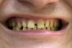 Teeths Royalty Free Stock Photography