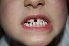 Teeths de los niños - mirada del primer imagen de archivo