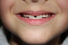 Teeths dei bambini - sguardo del primo piano Immagini Stock Libere da Diritti