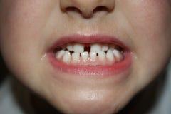 Teeths dei bambini - sguardo del primo piano Immagine Stock