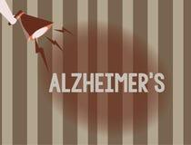 Tekst szyldowy pokazuje Alzheimer s jest Konceptualnej fotografii Postępowy umysłowy marnienie który może zdarzać się w wieku śre ilustracja wektor
