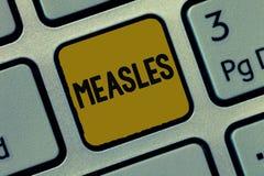 Tekstteken die Mazelen tonen Conceptuele foto Besmettelijke virale ziekte die koorts en een rode uitbarsting op de huid veroorzak royalty-vrije stock afbeeldingen