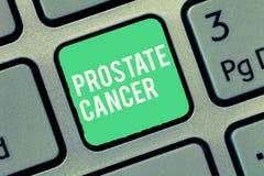 Tekstteken die Prostate Kanker tonen Conceptuele fotokanker die in de klier van mannelijk reproductief systeem voorkomt royalty-vrije stock fotografie