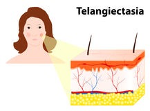 Telangiectasias. Spider veins or angioectasias Stock Photography