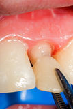 Temporary crown for tooth Stock Image