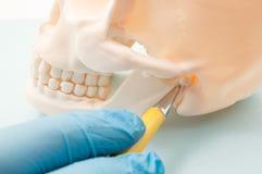Temporomandibular skarv TMJ, skarv av den lägre käken och örakanalen Läkaren indikerar på den mandibular skarven eller människan arkivfoton