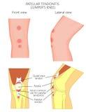 Tendonitis соединения колена problem_Patellar или колено шлямбура Передние и боковые взгляды Стоковые Фотографии RF