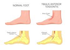 Tendonitis anterior de los injury_Tibialis intermedios del tobillo stock de ilustración