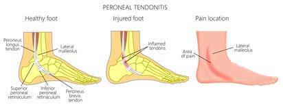 Tendonitis péronéal d'Injuries_Peroneal de tendon illustration stock