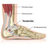 Tendonitis peroneo, ejemplo médico de la junta de tobillo 3d libre illustration