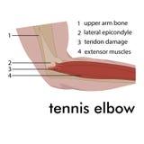Tennis elbow Images libres de droits
