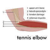 Tennis elbow Royalty Free Stock Images