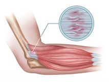 Lateral epicondylitis Stock Images