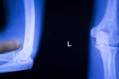 Tennis elbow joint xray scan Royalty Free Stock Photography