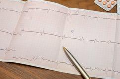 Tension artérielle mesurant avec le cardiogramme Photographie stock
