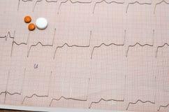 Tension artérielle mesurant avec le cardiogramme Images stock