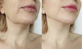 Tensione femminile del doppio mento prima e dopo la correzione fotografia stock