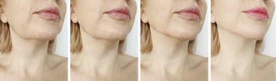 Tensione ovale del doppio mento femminile prima e dopo la correzione fotografia stock