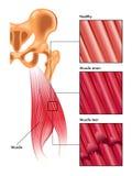 Tensão e rasgo do músculo Fotografia de Stock Royalty Free
