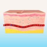 组织tepair解剖学在人的皮肤的 免版税库存照片