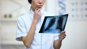 Terapeuta fêmea profissional que olha o raio X dos pulmões, pensando sobre o diagnóstico vídeos de arquivo
