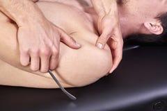 Terapeuta que hace Fibrolysis diacutaneous, de los ganchos que curan el tratamiento en el man& x27; s detr?s Medicina alternativa foto de archivo