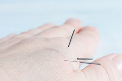 terapia da acupuntura Imagem de Stock