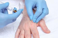 terapia de la inyección de la Anti-edad Rejuvenecimiento de la mano Imágenes de archivo libres de regalías
