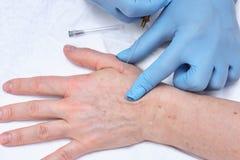terapia de la inyección de la Anti-edad Rejuvenecimiento de la mano Fotos de archivo