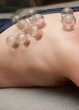 Terapia de la medicina alternativa Fotografía de archivo