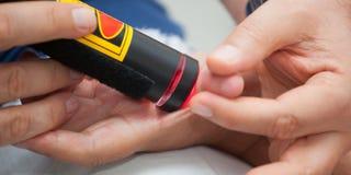 Terapia del laser al pulgar Fotografía de archivo libre de regalías