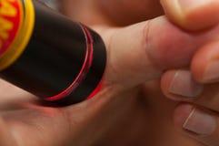 Terapia del laser al pulgar imagenes de archivo
