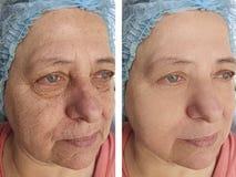 Terapia del tratamiento de la regeneración de las arrugas de la cara de la mujer mayor antes y después de procedimientos imagen de archivo libre de regalías