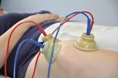 Terapia elettrica Fotografia Stock Libera da Diritti