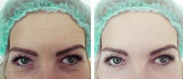 Terapia femminile di correzione di risultati delle grinze della fronte prima e dopo i trattamenti fotografia stock libera da diritti