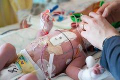 Terapia intensiva del bambino Fotografie Stock Libere da Diritti