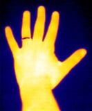 Termógrafo-Mano y anillo Imagen de archivo libre de regalías