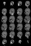 Mri do cérebro humano Imagens de Stock Royalty Free