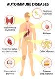 Tessuti del corpo umano colpito tramite l'attacco autoimmune Fotografie Stock Libere da Diritti