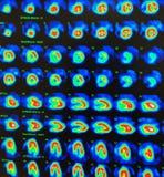 Test de tension myocardique nucléaire de perfusion Photos libres de droits