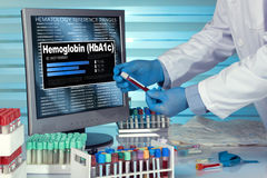 Test of Hemoglobin HbA1c. technician in lab examining blood samp Stock Images