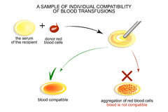 The test on individual blood compatibility Stock Photography